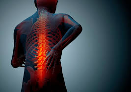 Auto Injuries Increase Risk of Future Back Pain
