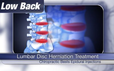 Chiropractic Better than Epidural Injections for Back Pain