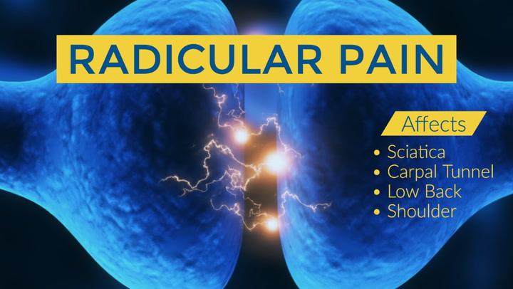 Chiropractic for Radicular Pain