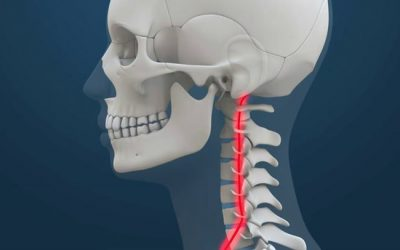Neck Pain After Auto Injury