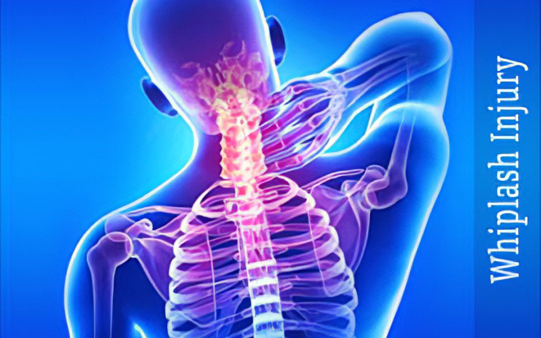 How Long Does it Take to Recover From Whiplash?