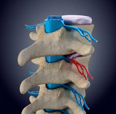 Early Degenerative Changes May be a Source of Future Low-Back Pain