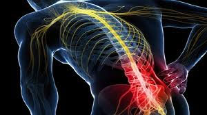 The Effects of Sciatica on Your Muscles