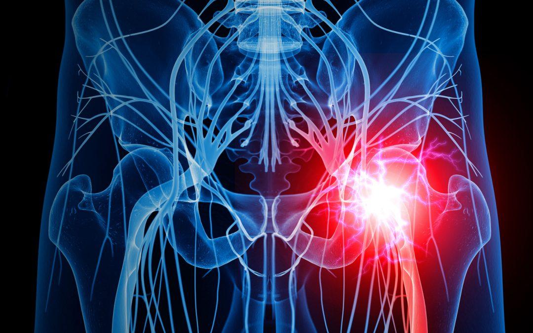 Drugs Ineffective for Sciatica Pain